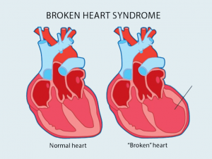 A diagram shows how the human heart can change shape under stress from a romantic loss.